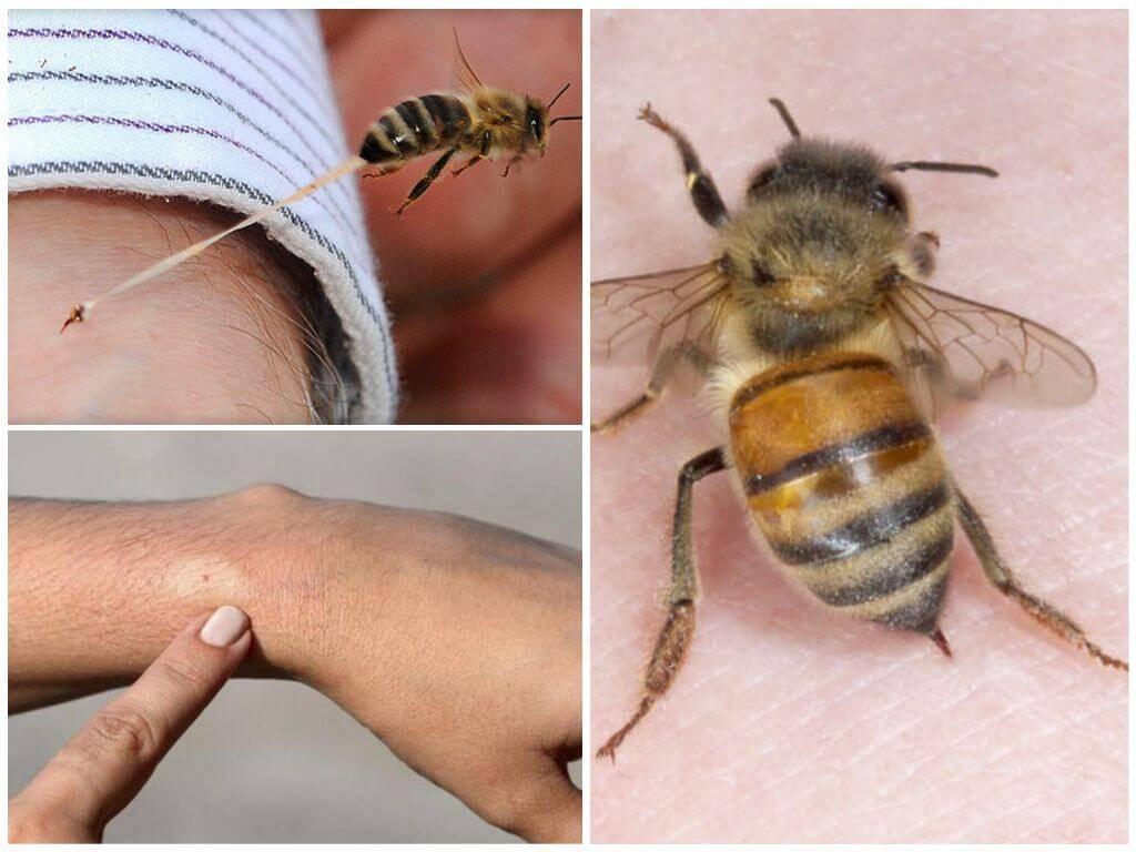 Полезен ли укус пчелы для простатита чага при простатите