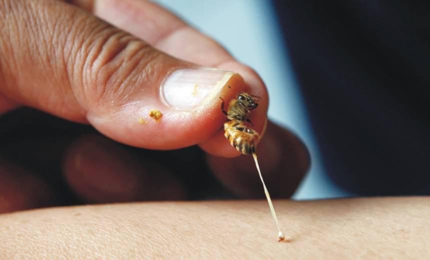 Пчелиный яд (апитоксин): состав, действие на организм, применение