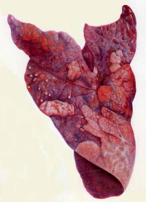 Описание бронхопневмонии у телят, правила лечения, методы профилактики
